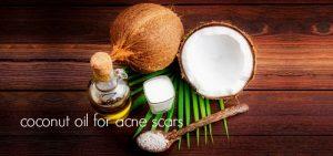 aceite de coco para las cicatrices del acné