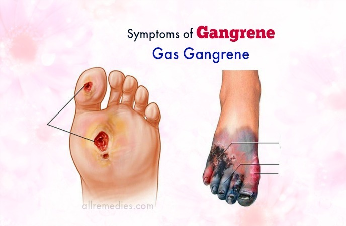 síntomas de gangrena en las piernas