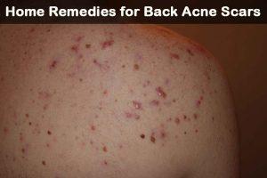 Cicatrices de acné en la espalda