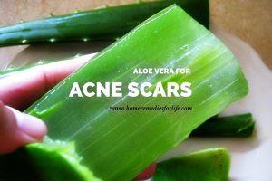 Aloe vera para las cicatrices del acné