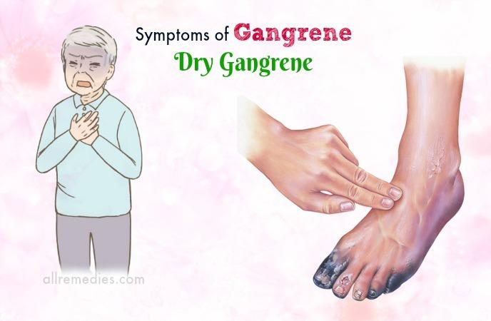 síntomas de la enfermedad de la gangrena