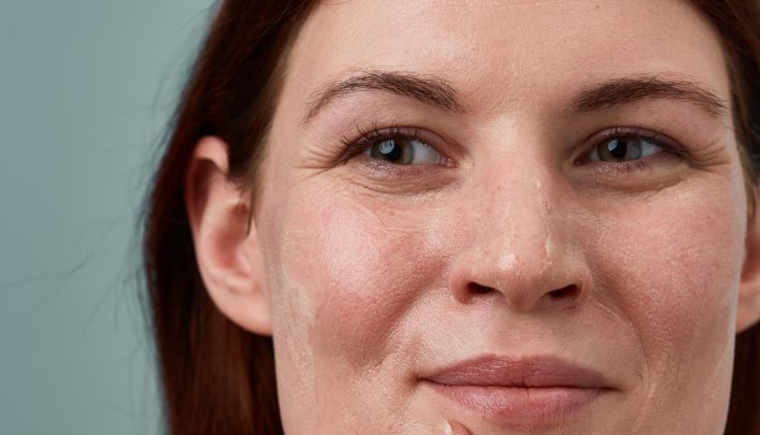 ¿Qué es la rosácea?  |  Causas, desencadenantes y tratamientos de la rosácea