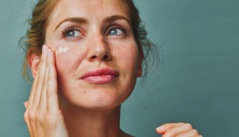 Dieta y acné |  Alimentos que causan acné y qué evitar