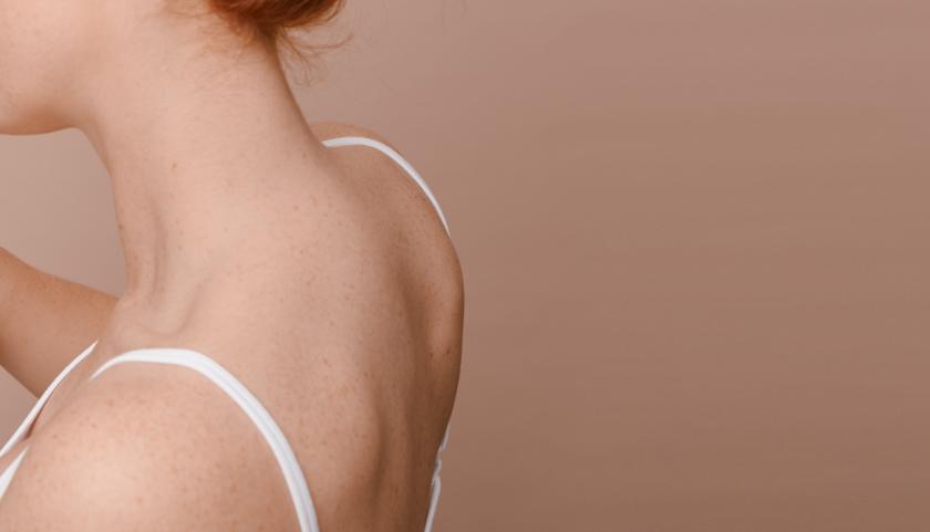 Pai Skincare: evitar la irritación que puede provocar acné en la espalda