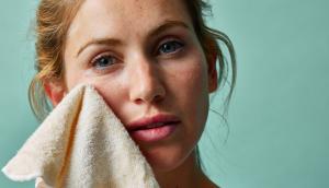 5 formas de ganar la temporada de fiestas con piel sensible