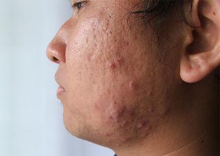 El secreto para ser más astuto que tu acné