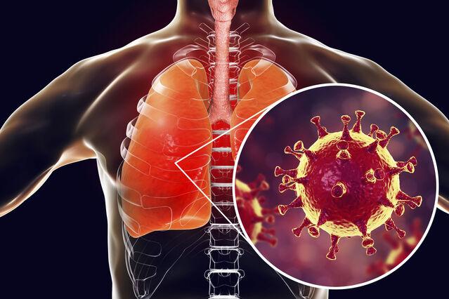 La nutrición puede fortalecer el sistema inmunológico para combatir el COVID-19