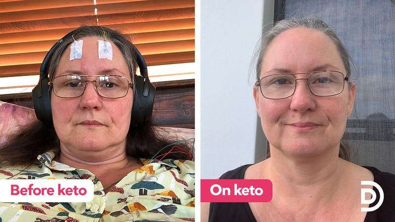 bibi-before-and-on-keto