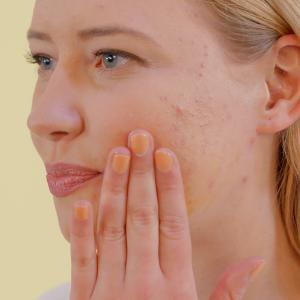 ¿Cuáles son los beneficios para la piel del aceite de rosa mosqueta?