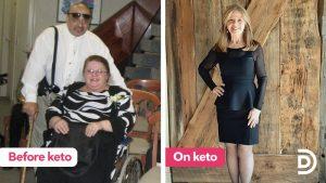 terri-before-and-on-keto